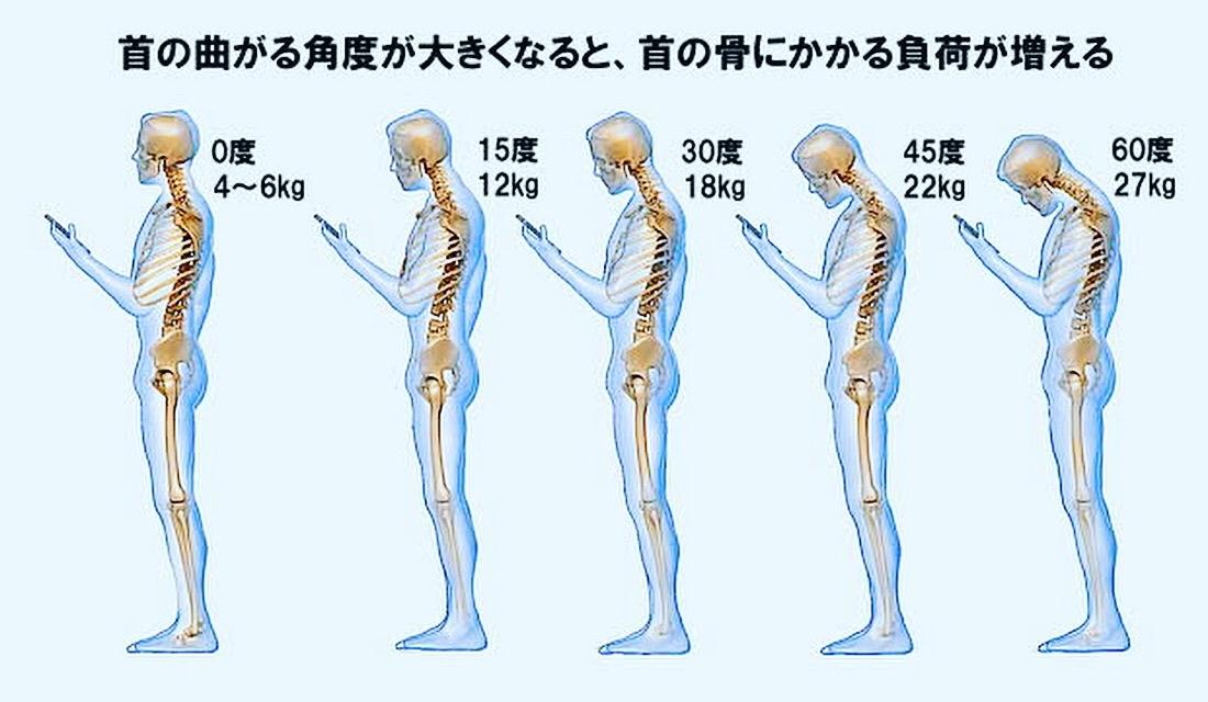 姿勢と首の負担